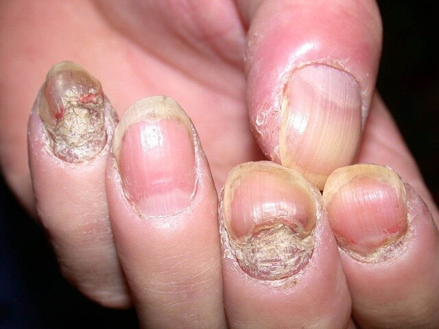 Bệnh nấm móng gây bong tróc, sần sùi móng
