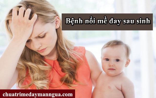 Chữa bệnh nổi mề đay sau sinh