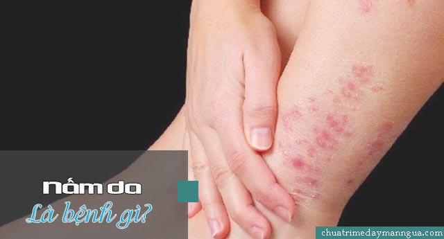 nấm da là bệnh gì?