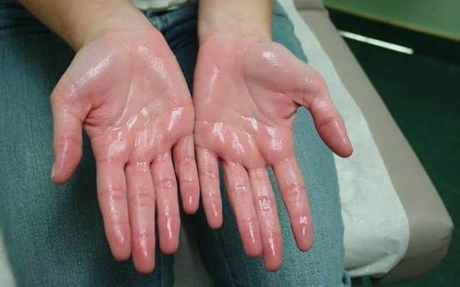 Da tay ẩm ướt gây nấm móng