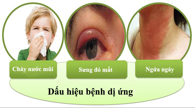 Triệu chứng của bệnh dị ứng