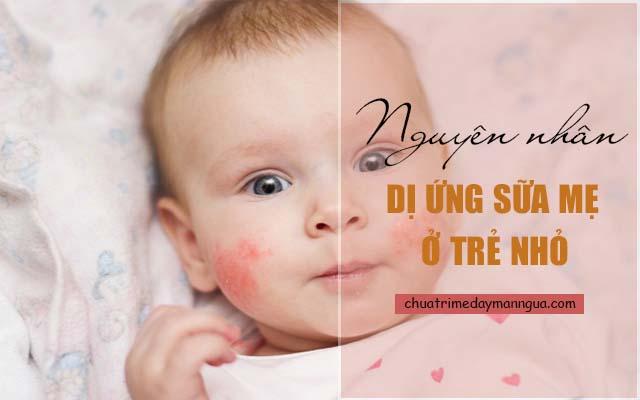 Cần biết cách điều trị dị ứng sữa mẹ ở trẻ nhỏ
