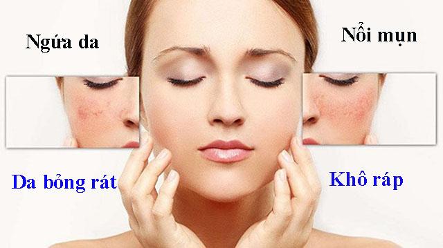 Một số triệu chứng dị ứng da mặt