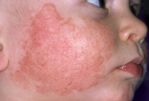 Chàm bội nhiễm hay còn gọi là bệnh eczema