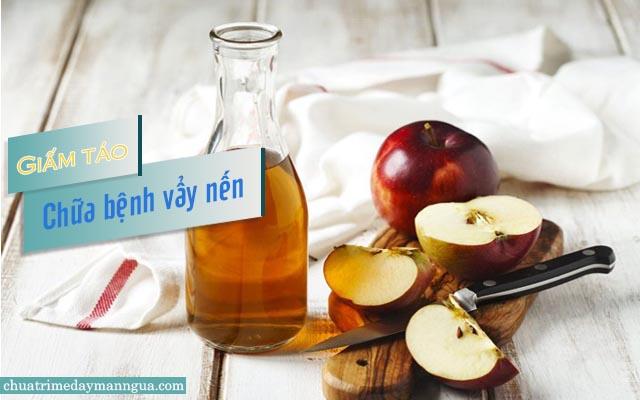 Giấm táo chữa vẩy nến