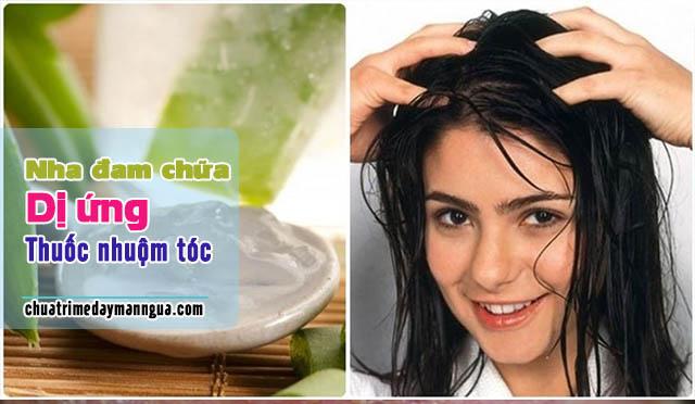Lô hội chữa dị ứng thuốc nhuộm tóc.