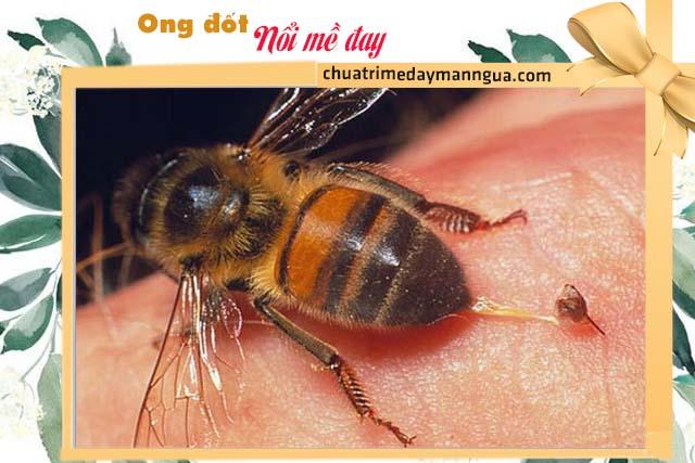 Ong đốt xuất hiện tình trạng nổi mề đay