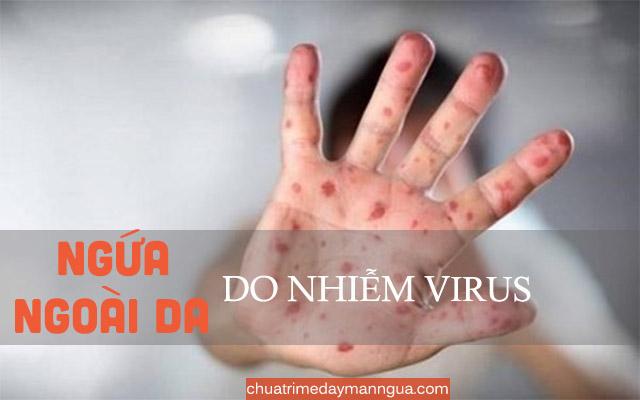 ngứa da do nhiễm Virus