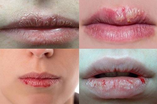 Biểu hiện khi bị chàm môi