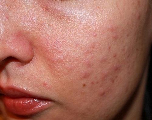 Làm gì khi da mặt bị ngứa và sần sùi 1