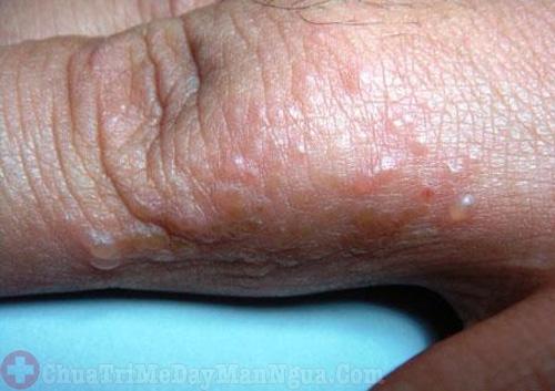 bệnh chàm tổ đỉa do nhiều nguyên nhân gây ra