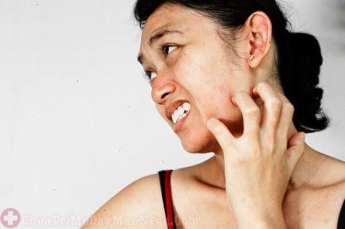Bệnh phát ban đỏ ngứa trên da