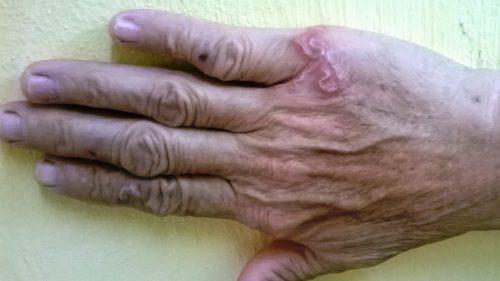 Bệnh giun sán gây ngứa da toàn thân