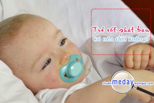 sốt phát ban có nên tắm cho trẻ không?