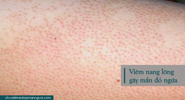 mẩn đỏ ngứa ở háng do viêm nang lông