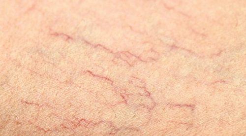 Danổi mẩn đỏ nhưng không ngứa do bị giãn mao mạch