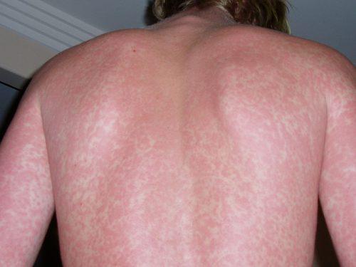 Danổi mẩn đỏ nhưng không ngứa do nhiễm virus siêu vi