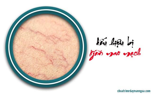 Da bị nổi mẩn đỏ khắp người nhưng không ngứa là bị gì?