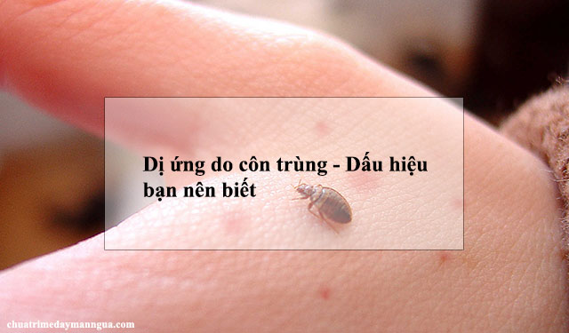 Dấu hiệu dị ứng do côn trùng