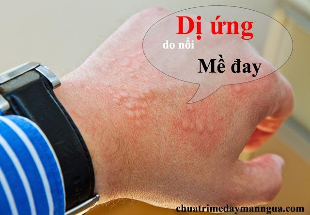 Triệu chứng dị ứng da do nổi mề đay