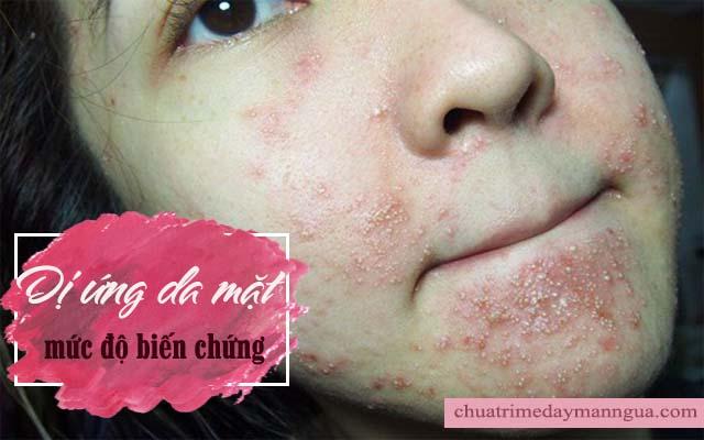 Dị ứng da mặt ở mức độ biến chứng