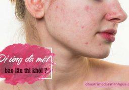 Dị ứng da mặt bao lâu thì khỏi