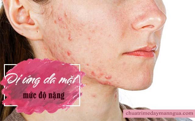 Dị ứng da mặt ở mức độ nặng