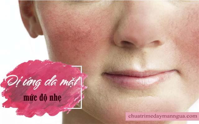 Dị ứng da mặt ở mức độ nhẹ