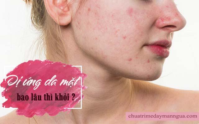 Dị ứng da mặt bao lâu thì khỏi?