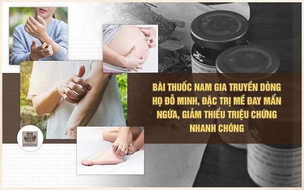 bài thuốc nam gia truyền của Đỗ Minh Đường chữa trị mề đay mẩn ngứa hiệu quả