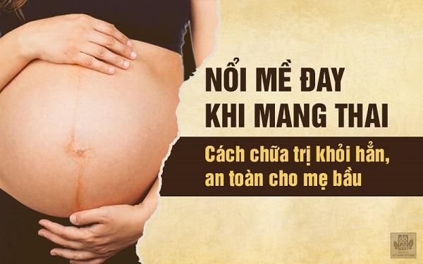 Chữa trị nổi mề đay ở phụ nữ mang thai khỏi hẳn, an toàn