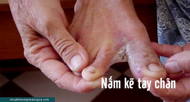 nhận biết các bệnh nấm ngoài da