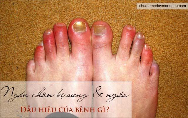 Ngón chân bị sưng và ngứa là dấu hiệu của bệnh gì?
