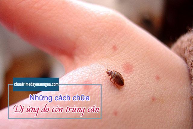 dị ứng do côn trùng cắn