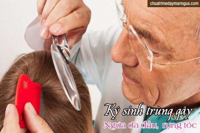 Ngứa da đầu do ký sinh trùng