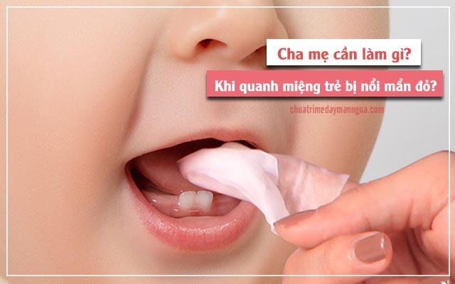 cần làm gì để bé hết bị mẩn đỏ quanh miệng