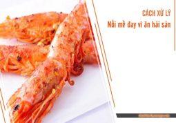 xử lí nổi mề đay vì ăn hải sản