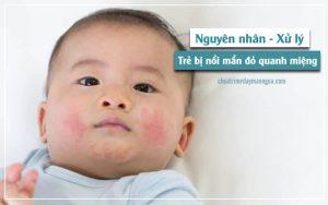 nổi mẩn đỏ quanh miệng ở trẻ
