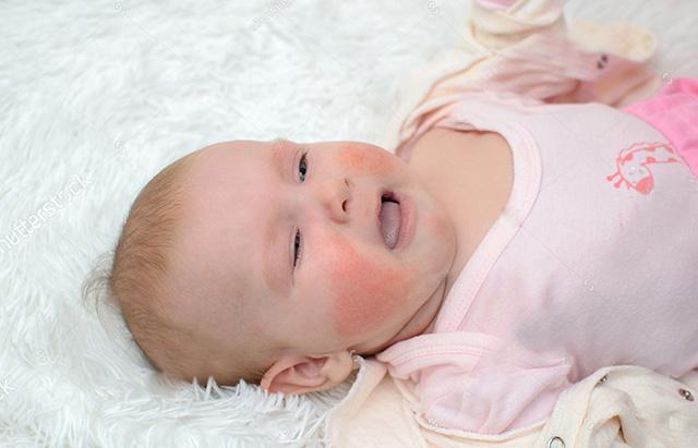 Tìm hiểu các cách chữa nổi mẩn ngứa cho trẻ