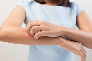 triệu chứng dị ứng tôm cua