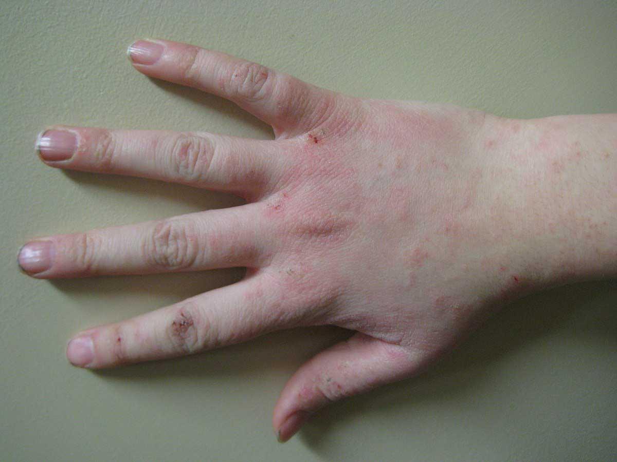 triệu chứng nổi mẩn đó ở tay và chân
