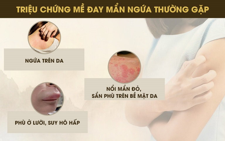 Triệu chứng điển hình của bệnh mề đay, mẩn ngứa