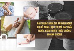 phương pháp chữa phát ban mề đay hiệu quả