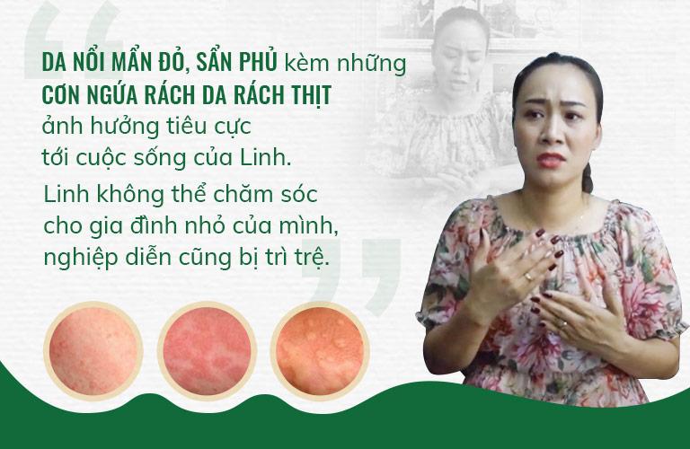 Diễn viên Phùng Khánh Linh đã có khoảng thời gian bị mề đay mẩn ngứa hành hạ